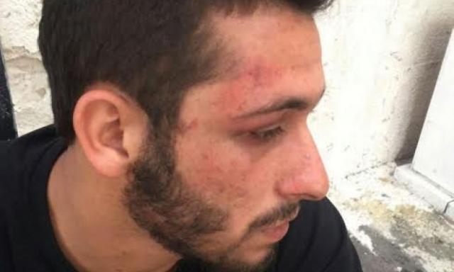 מיסם אבו אלקיעאן. לאחר התקיפה והמעצר.